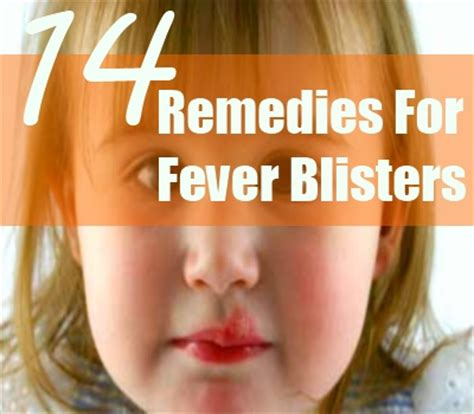 how to relieve a fever blister thats inside the nose ehow 14 home remedies for fever blisters natural treatments