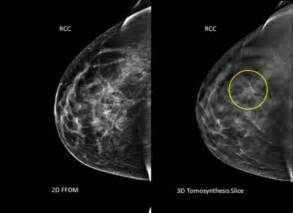 Z Techs Breast Cancer Scanner 3 d mammogram scans may find more breast cancer daily