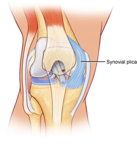synovial plica the knee