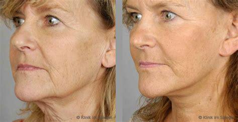 Facelift Vorher Nachher by 196 Sthetische Chirurgie Facelift Gesichtsstraffung