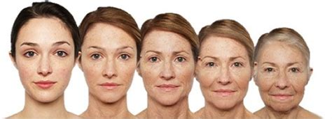 plastic surgery or natural aging changes facial aging dr dirk lazarus plastic surgeon