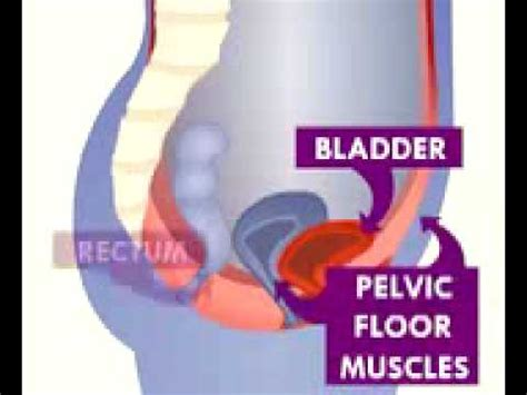 Pelvic Floor Problems by Incontrol Tens For Strengthening Muscles Of The Pelvi