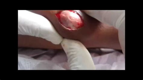 cyst popped cyst popping images
