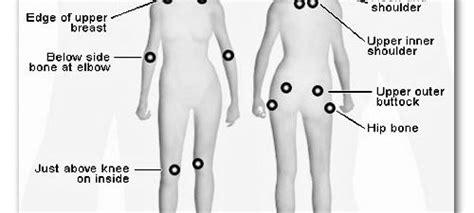 pressure points fibromyalgia diagram pregabalin jarret morrow m d