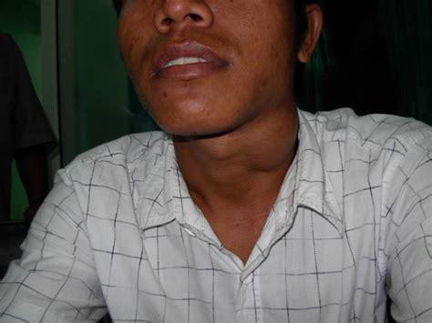 Ace Maxs Di Makassar cara mengobati bengkak di leher sebelah kiri distributor