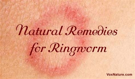Ringworm Detox by 1000 Images About Home Remedies On Flu Apple