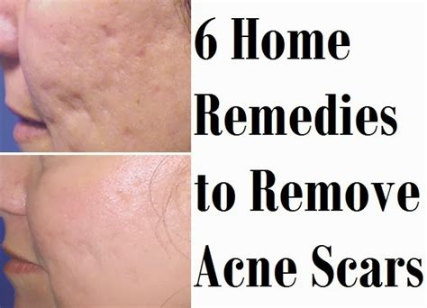 6 home remedies to remove acne scars medimiss