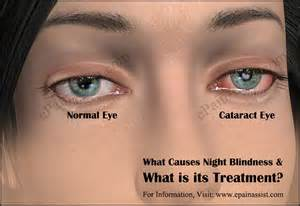 Treatment For Night Blindness What Causes Night Blindness Amp What Is Its Treatment