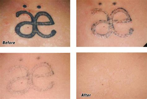 black ink tattoo removal laser removal