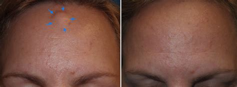 swelling above c section incision forehead osteoma removal richmond endoscopic osteoma removal