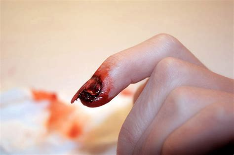 cracked nail broken nail by rossmakeup