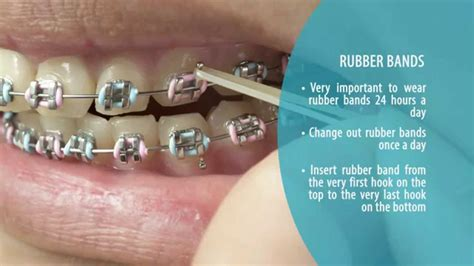 Rubber Web Watches You While You Work by How To Brush And Maintain Your Teeth With Braces