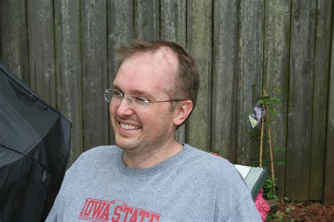 losing hair on back losing my hair a of cancer
