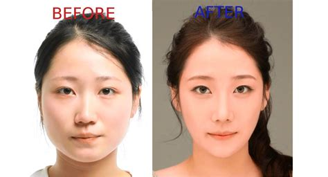 Popular In Korea 8 most popular plastic surgery procedures in korea