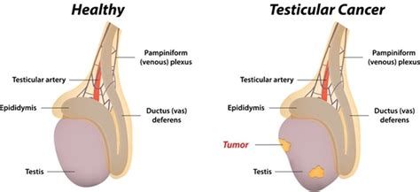 checking for testicular cancer diagram the about testicular cancer eye for fashion