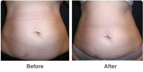 lypo section liposuction vaser ultrasound laser corona ca