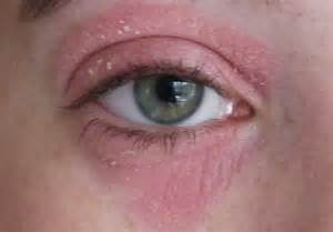 How To Treat Extremely Dry Skin On Face by Gallery For Gt Dermatitis Eyes