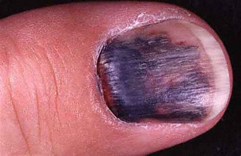 bruised nail bed black toenails podiatrist san angelo tx