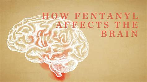 fentanyl affects  brain