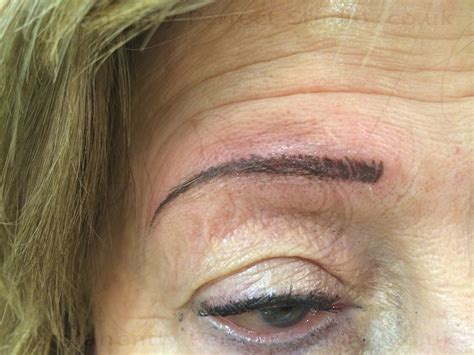 tattoo removal west yorkshire eyebrow removal leeds removal