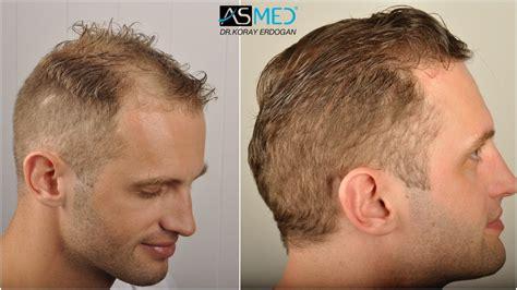 hair transplants 1000 graft coverage asmed hair transplant results gallery norwood 4 dr