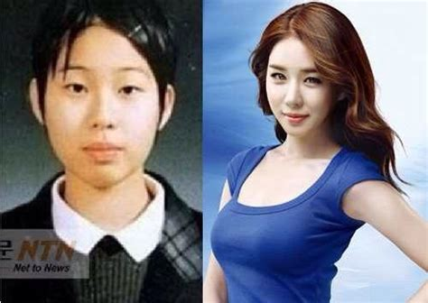 korea actor and actress news korean actors actresses before and after plastic surgery