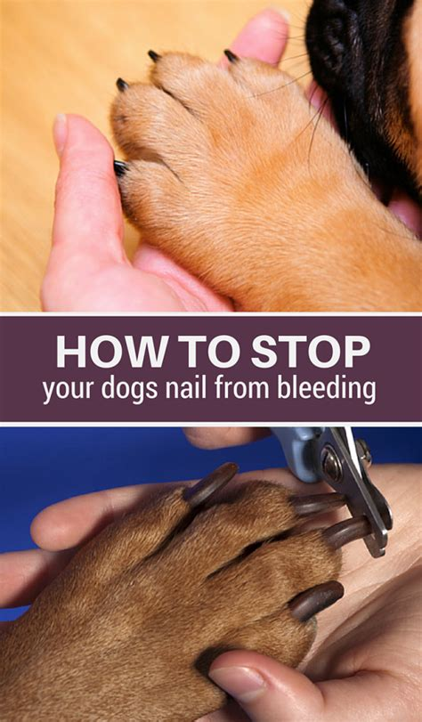 how to stop a s nail from bleeding how to stop bleeding when cutting s nails nail ftempo