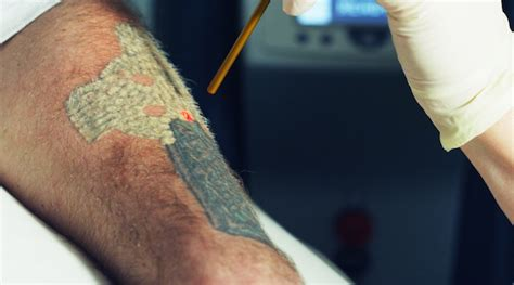 laser tattoo removal information adding removal to your existing practice