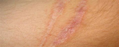 raised c section scar scars and scarring