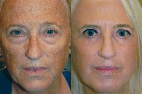 blue light treatment for sun damage you don t to be stuck with sun damage adam