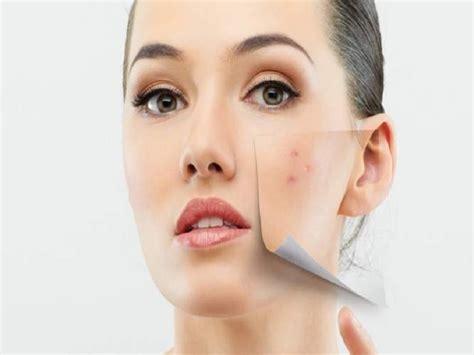 Perwatan Wajah Cantik Mu tips merawat kulit agar putih alami wallpaper