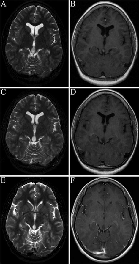 Pediatric tectal plate gliomas: clinical and radiological