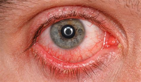 home remedy pink eye i grandmas home remedies