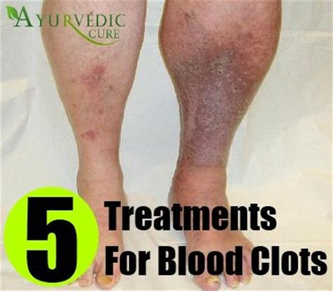5 treatments for blood clots health care