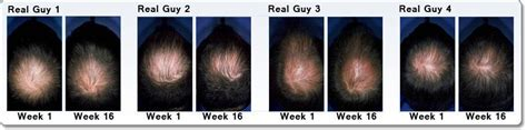 does minoxidil work women before and after rogaine reviews the no 1 solution all women and men can