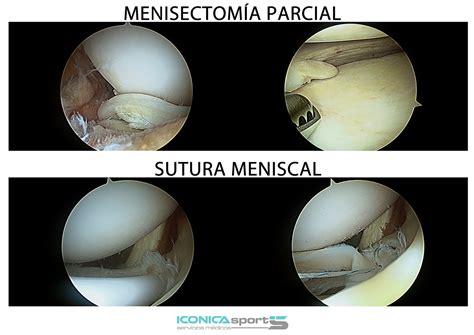 corno posteriore menisco interno sutura meniscal tratamiento de rotura de menisco