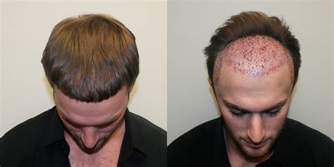 male hair transplant costs fue corrections best dr brett bolton hair transplant