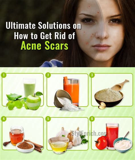 10 Ways To Treat Acne Scars by How To Get Rid Of Acne Naturally Html Autos Weblog