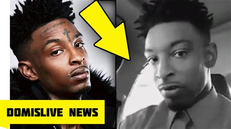 did 21 savage get his face tattoos removed youtube