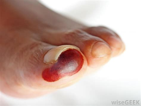 blood blister on what is a blood blister with pictures