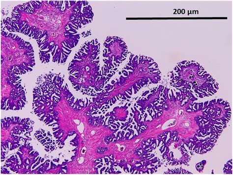 pattern analysis in histopathology ijms free full text kras braf analysis in ovarian low