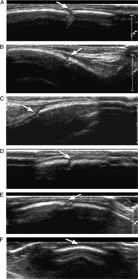 Cranial Ultrasound as a First-Line Imaging Examination for