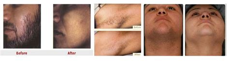 cowlicks treatments in northern virginia laser hair removal north virginia reflections image center