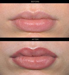 lip liner tattoo removal semi permanent lip treatment before and after