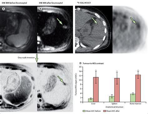 ionising radiation   body mri