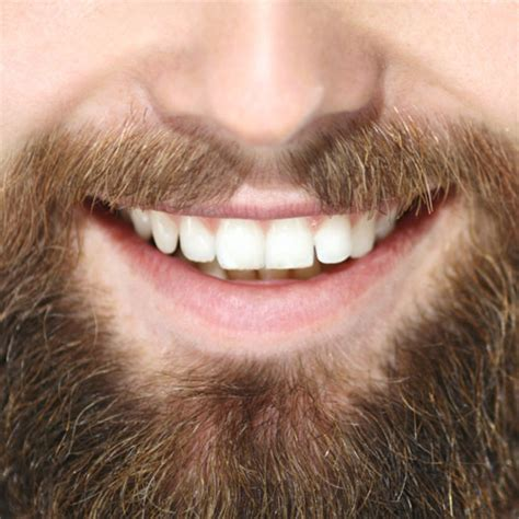 tooth whitening magpies dental practice