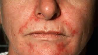 Seborrheic dermatitis on face treatment symptoms and pictures