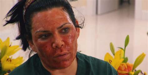 celebrity skin rejuvenation mob wives the skin rejuvenation of renee graziano 2000