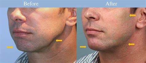 angular jaw line plastic surgeon men want cosmetic surgery to boost their