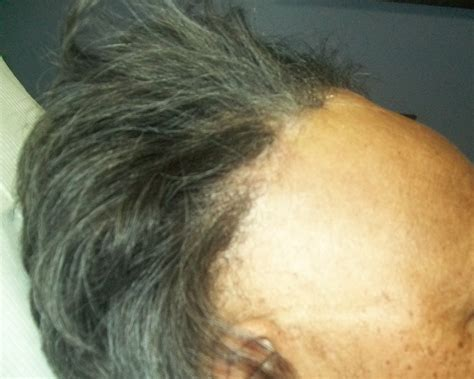 new treatment for alopecia 2014 hair loss understanding scarring vs non scarring